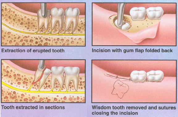 Удаление десны над зубом мудрости
